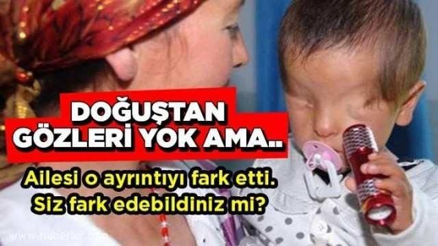 Gözleri Doğuştan Yok Ama.. Ailesi O Ayrıntıyı Fark Etti, Doktor Şok Oldu