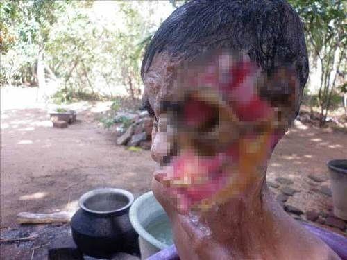 Et yiyen virüs kadının yüzünü yedi...