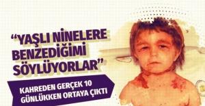 """Hastalığı 10 günlükken ortaya çıktı! Siirtli Yeliz'in kahreden hikayesi """"YAŞLI NİNELERE BENZEDİĞİMİ..."""""""
