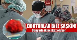 Son dakika haberi: Dünyada ikinci kez rastlanan vaka doktorları bile şaşırttı