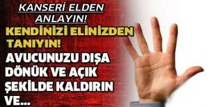 KANSERİ ELİNİZDEN ANLAYIN! AVUCUNUZU DIŞA DÖNÜK VE AÇIK ŞEKİLDE KALDIRIN VE!!!!