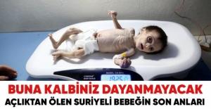 Açlıktan ölen Suriyeli bebeğin son anları