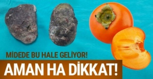 Yok artık! Trabzon hurması midede bu hale geldi!