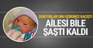 Bebeği gördüğünde gözlerine inanamadı doktorlar kaçıştı!
