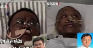Çin'de koronavirüs tedavisi alan doktorların ten rengi değişti!