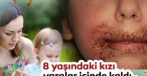 8 yaşındaki kızı yara içinde kaldı...Doktor annenin araştırmasının sonucu korkunç oldu!