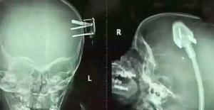 Doktorlar Röntgeni Görünce Dehşete Düştü!!! Anne Babalar Bu Okuyacaklarınızdan Sonra Tedbiri Elden Bırakmayacaksınız