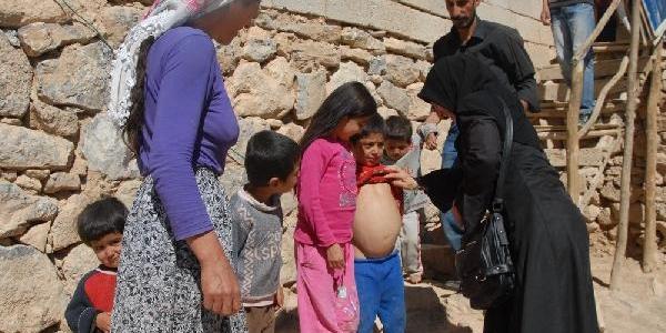 10 Çocuklu Ailenin 3 Çocuğu Böbrek Ve Karaciğer Hastasi
