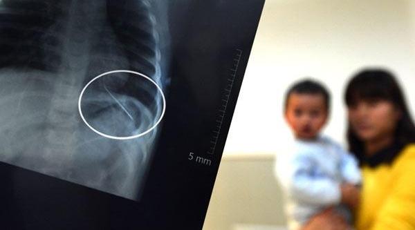 14 Aylik Bebeğin Akciğerinde Iğne Çikti