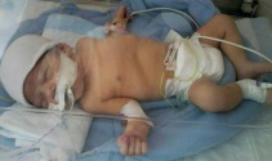 Minik Zehra ameliyat olamadan öldü