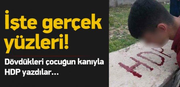 Dövdükleri çocuğun kanıyla HDP yazdılar