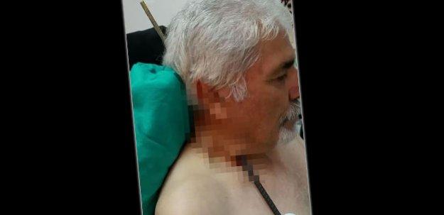 Sivas'ta korkunç kaza! Boynuna saplandı
