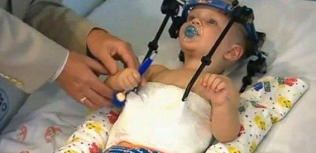 Başı kopan 16 aylık bebeğin mucize kurtuluşu!