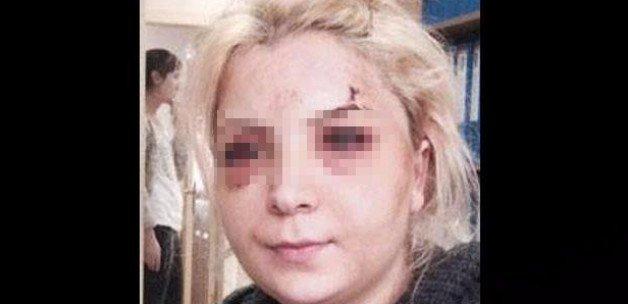 'Eski kocam dövdü' diye karakola gitti, tutuklandı