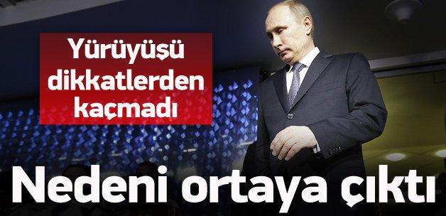 Putin'in yürüyüşündeki sır ortaya çıktı