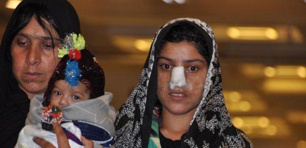 Burnu kesilen Afgan kadın tedavi için Türkiye'de