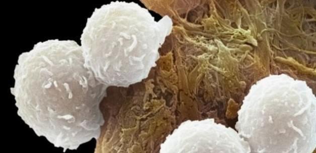 Kanser tedavisinde çok önemli gelişme