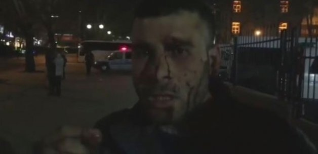 Ankara Saldırısının Görgü Tanığı Yaşadıklarını Anlattı