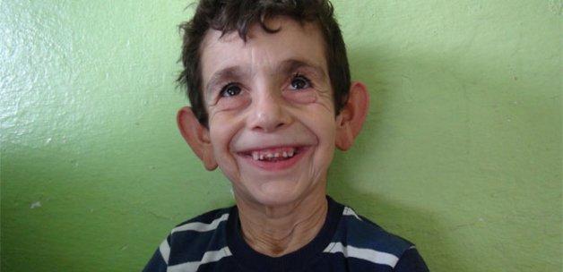 'Erken yaşlanma hastalığına' yakalanan çocuğun yürek yakan dramı