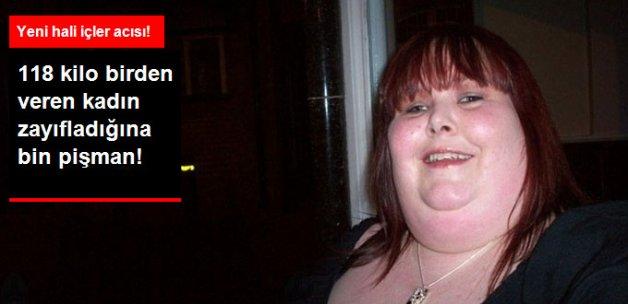 118 Kilo Veren Kadın Zayıfladığına Pişman Oldu