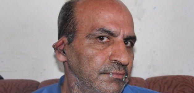 BM'yi protesto için ağzı ve kulaklarını dikti