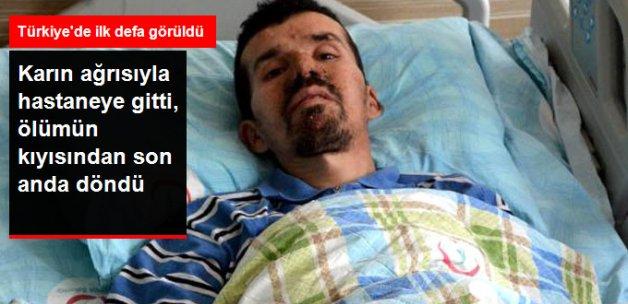 Karın Ağrısıyla Hastaneye Gitti, Böbreğinden 3 Kilo Tümör Çıktı