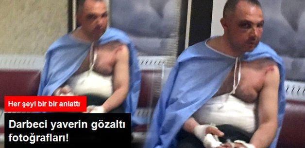 Orgeneral Akar'ın İtirafçı Olan Yaverinin Gözaltı Fotoğrafları! Her Yeri Yara İçinde
