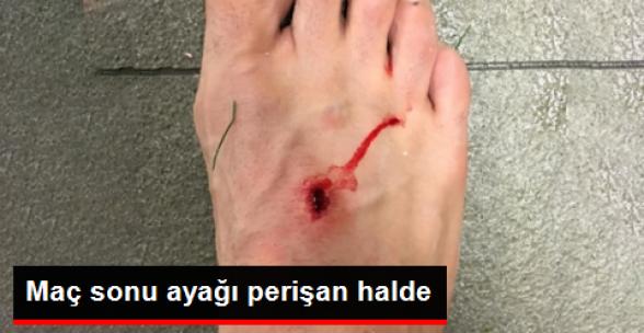 Filipe Luis, Barcelona Maçı Sonrası Ayağının Fotoğrafını Paylaştı