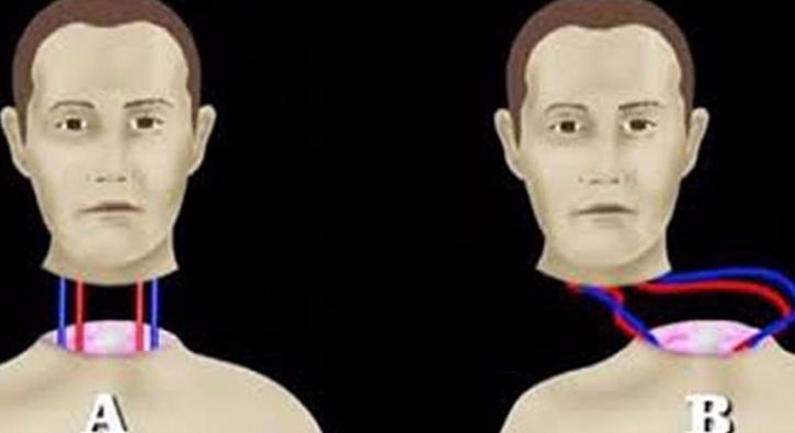 İlk insan kafası nakli seneye yapılacak