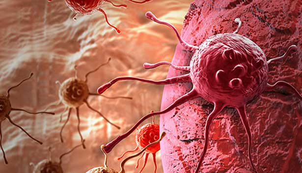 İmmüno-onkoloji, akciğerden sonra diğer kanserlerde de sağkalım süresini artırıyor