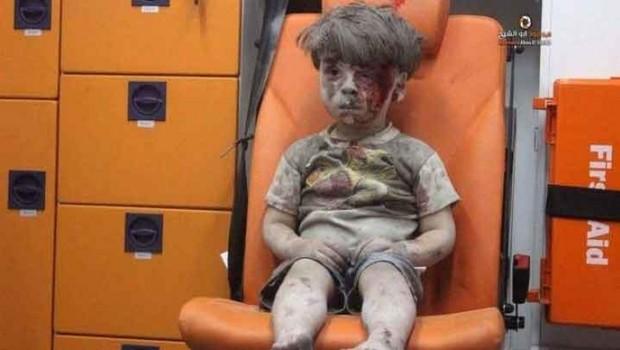Tüm dünyayı sarsan Suriyeli Ümran'dan kötü haber!