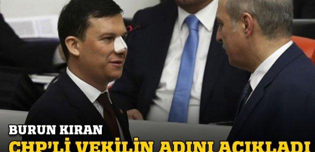 AK Partili Vekil burnunu kimin kırdığını açıkladı