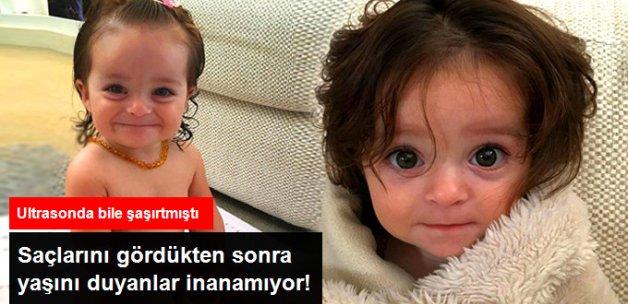 6 Aylık Bebeğin Gür Saçları Görenleri Şaşkına Çeviriyor