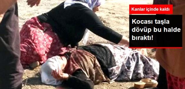 Eşinin Başına Taşla Vurarak Dövdüğü Kadın Ağır Yaralandı