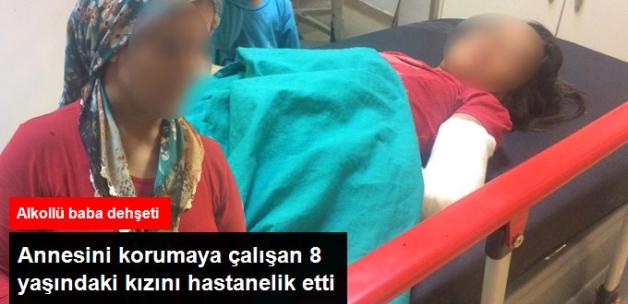 Karısını Döven Alkollü Koca, Ayırmak İçin Araya Giren Kızını Hastanelik Etti
