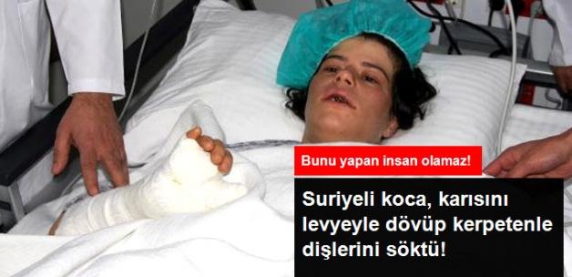 Suriyeli Koca, Eşini Levyeyle Dövüp, Kerpetenle Dişlerini Söktü!