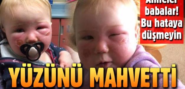 Annesinin sürdüğü güneş kremi yüzünü yaktı!