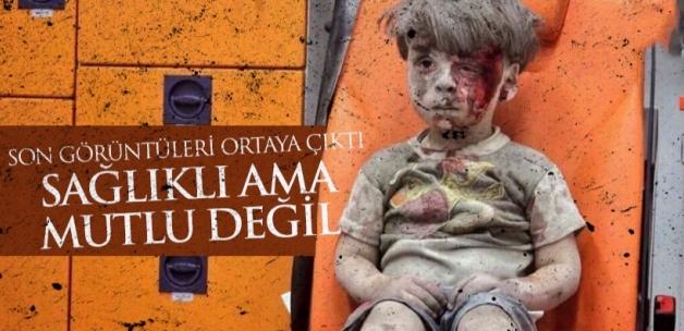 Suriye Savaşının Simgelerinden Küçük Ümran'ın Son Hali Görüntülendi