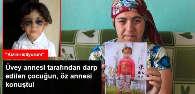 Karabük'te Üvey Annesi Tarafından Darp Edilen Çocuğun Öz Annesi Konuştu!