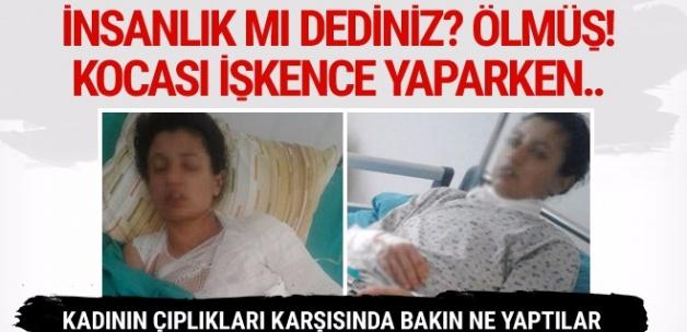 Kocası işkence yaparken yardım istedi sonrası çok fena