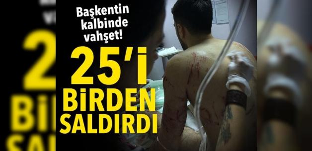Ankara'da köpek dehşeti!