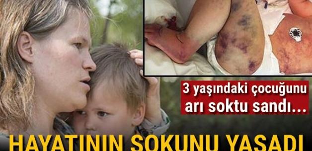 3 yaşındaki oğlunu arı soktu sandı... Morarmaya başlayınca hayatının şokunu yaşadı