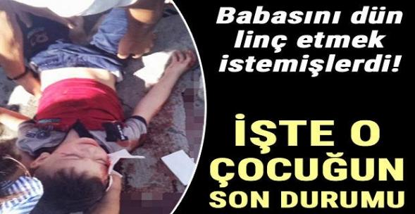 Esenyurt'ta Dehşet! Babası Tarafından Sokak Ortasında Dövülen Çocuk Beyin Kanaması Geçirmiş