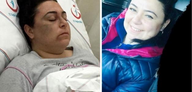 Antalya'da maganda tanımadığı 3 kadını döverek hastanelik etti