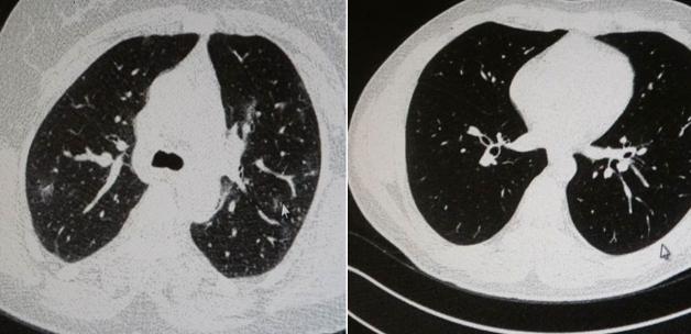 Aşılı ve aşısız olarak koronaya yakalanan 2 gencin akciğer tomografisi arasındaki fark görüntülendi