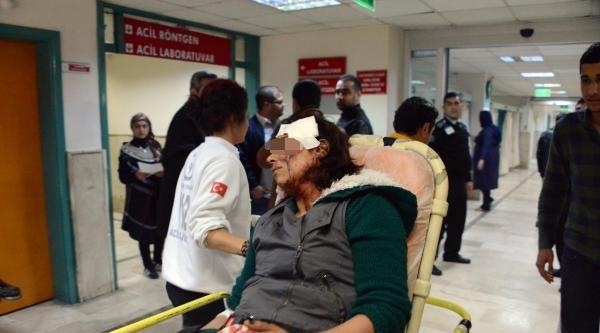 20 Yaş Küçük Sevgilisini, Başına Taşla Vurarak Ağır Yaraladı