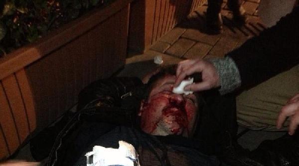 3130 Numaralı Polis Kaskıyla Burnu Kırılan Eylemci Konuştu