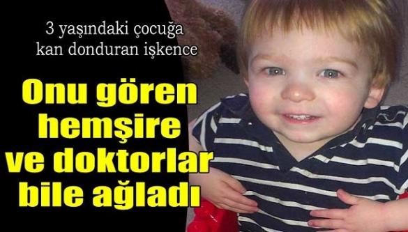 3 yaşındaki çocuğa kan donduran işkence! Hemşire ve doktorlar bile ağladı!