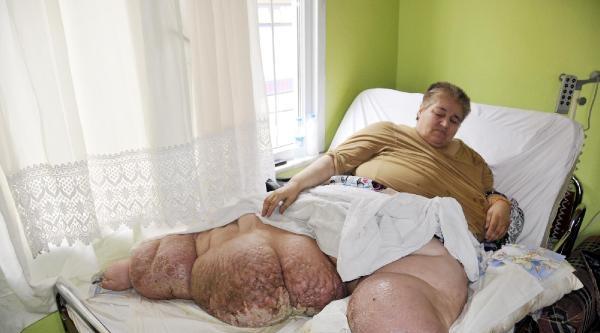 400 Kiloluk Fil Hastası Yardım Bekliyor