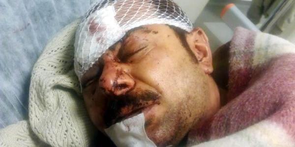 4 Suriyeli, Işyeri Sahibini Dövüp, Parasini Gasp Etti